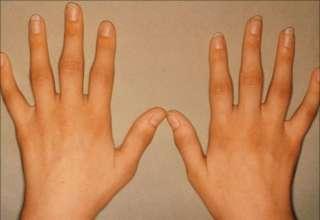 Bolovi u rukama