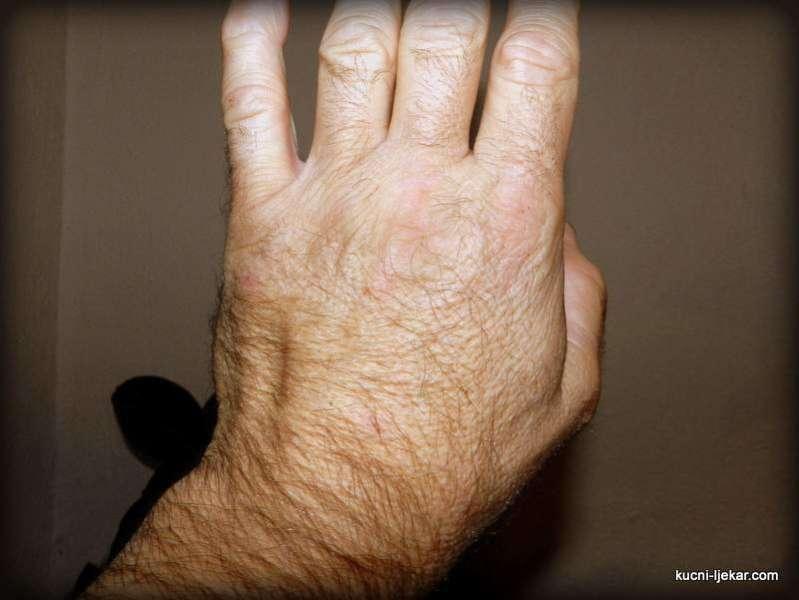 Prirodni lijek protiv upale zglobova