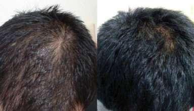 Lijek protiv opadanja kose