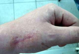 Krema za uklanjanje ožiljaka