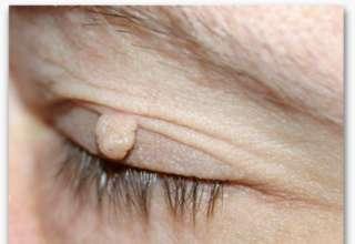 Uklanjanje bradavica i fibroma